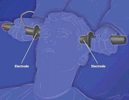ElectroconvulsiveTherapy