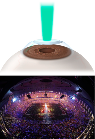 stadium eyeball shape