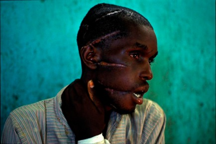 nyanza hospital run by icrc. must have been may or june 1994. hutu moderate man macheted by interahamwe or hutu troops.